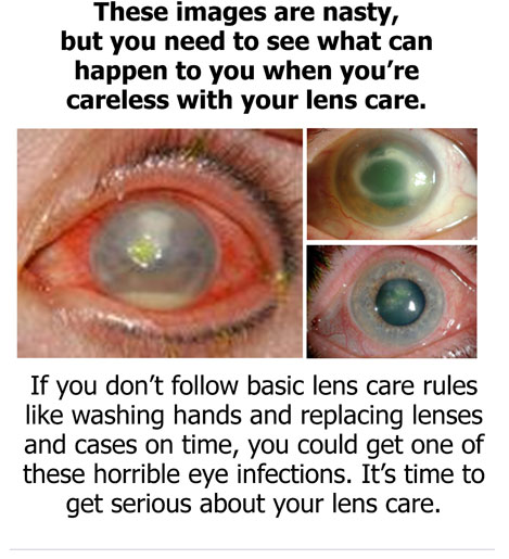 Contact Lens Infection Causes Symptoms 28 Images 17 Best Images About Eye Health Glasses On